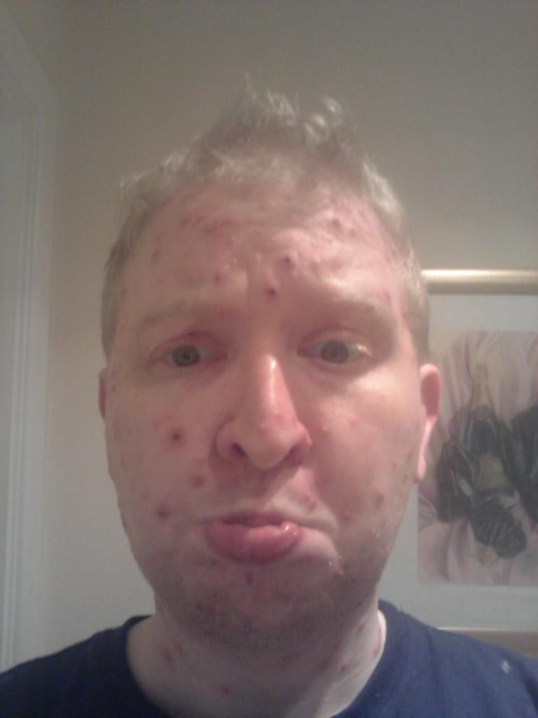 chicken pox at 29